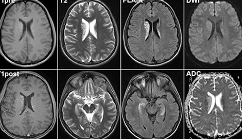 Mj может состарить головной мозг почти на три года