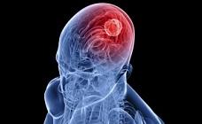 Блог Serious Seeds: правительство Соединенных Штатов НАКОНЕЦ признало, что каннабис убивает раковые клетки