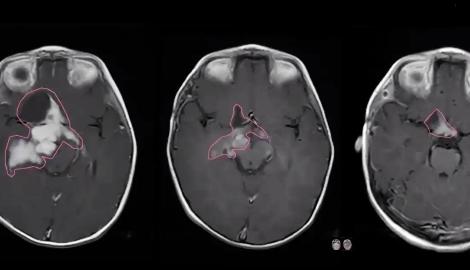 Видео: Истории лечения каннабисом