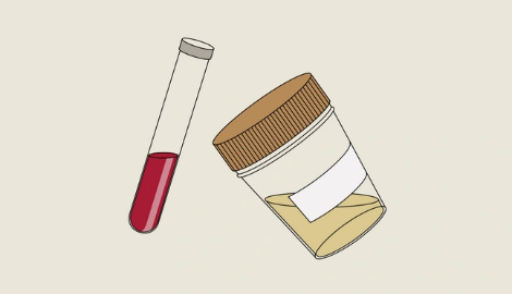 Что делать если вас задержали и предлагают пройти тест на наркотики?