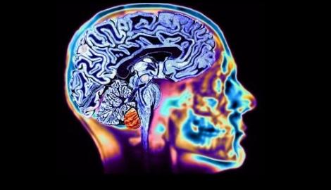 Ученые подтвердили эффективность КБД при нейрозаболеваниях